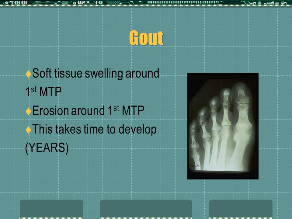 Gout Soft tissue swelling around 1st MTP Erosion around 1st MTP