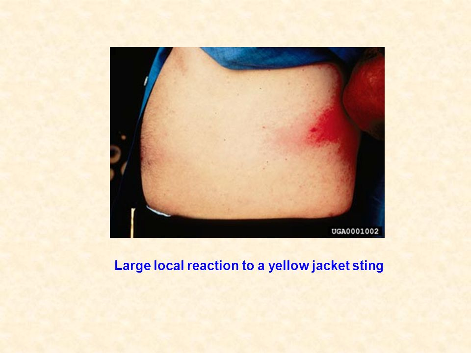 Large local reaction to a yellow jacket sting
