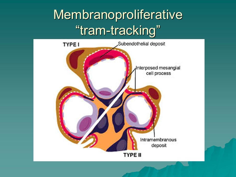 Membranoproliferative tram-tracking