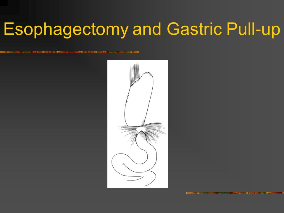 Esophagectomy and Gastric Pull-up
