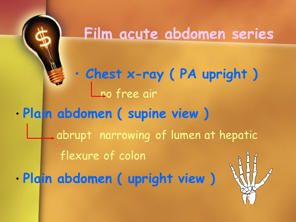 Film acute abdomen series