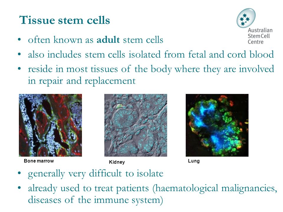 adult stem cells to treat arthritis jpg 422x640