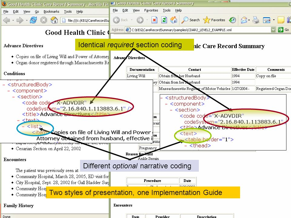Implementation Guides constrain coding