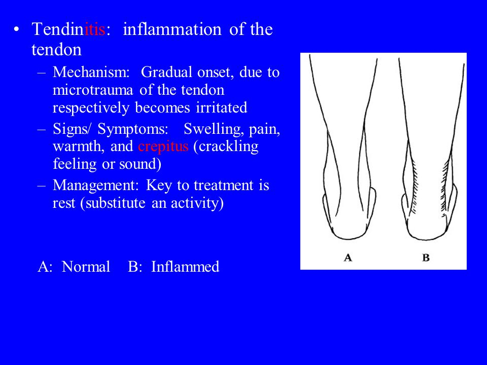 Tendinitis: inflammation of the tendon