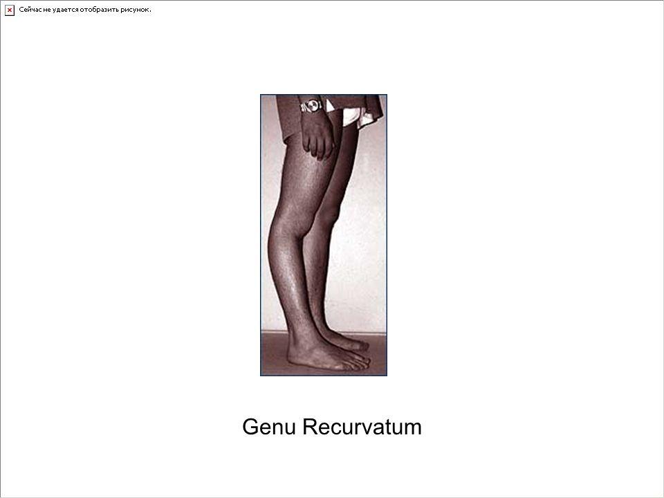 Genu Recurvatum
