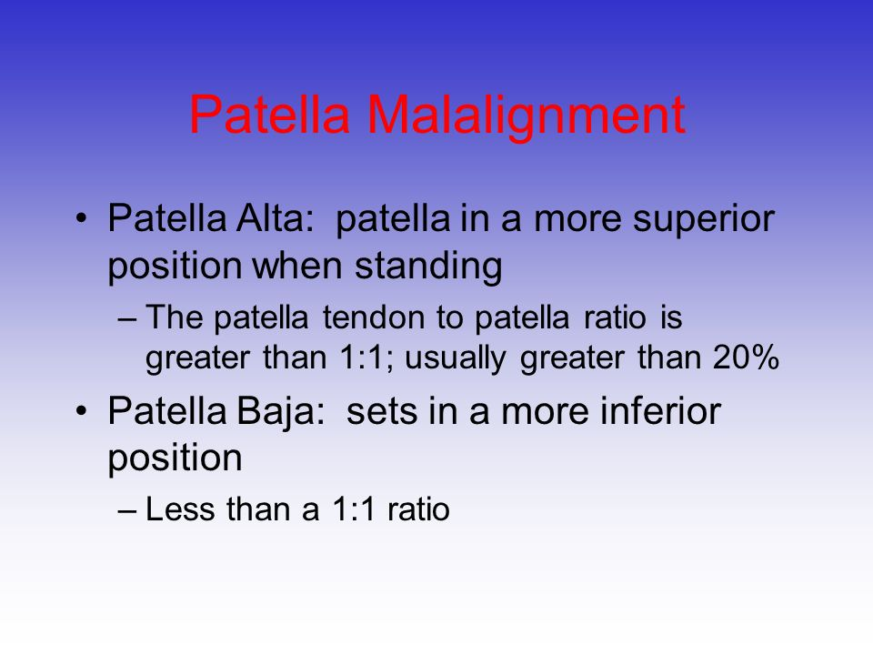 Patella Malalignment Patella Alta: patella in a more superior position when standing.