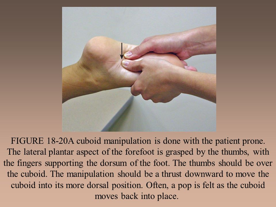FIGURE 18-20A cuboid manipulation is done with the patient prone