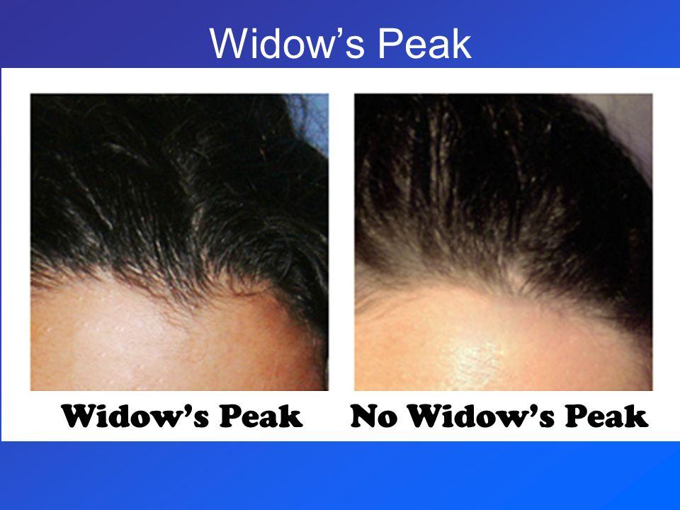 Widow's Peak Widow's Peak No Widow's Peak