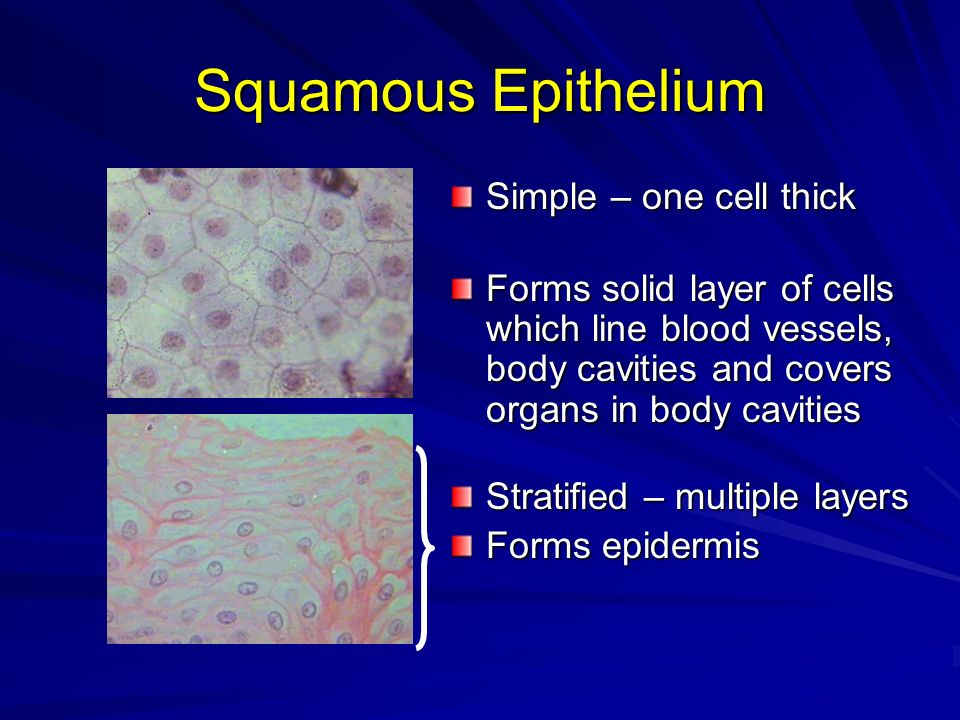 Squamous Epithelium Simple – one cell thick