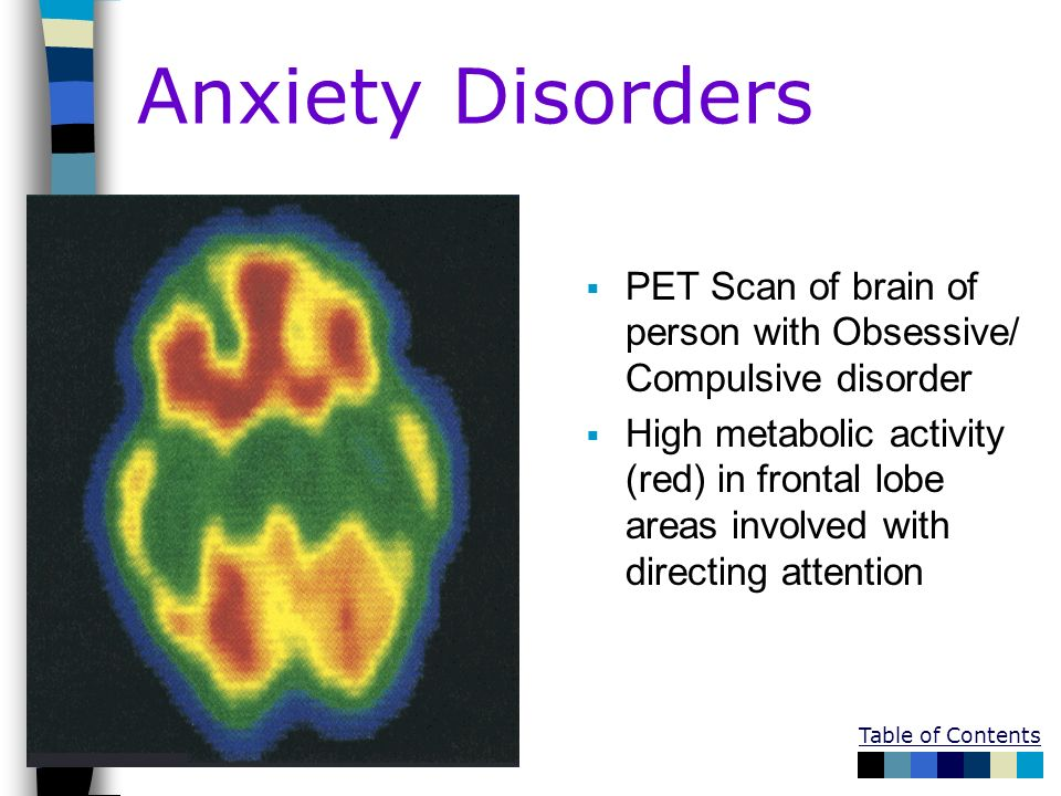 Anxiety Disorders PET Scan of brain of person with Obsessive/ Compulsive disorder.