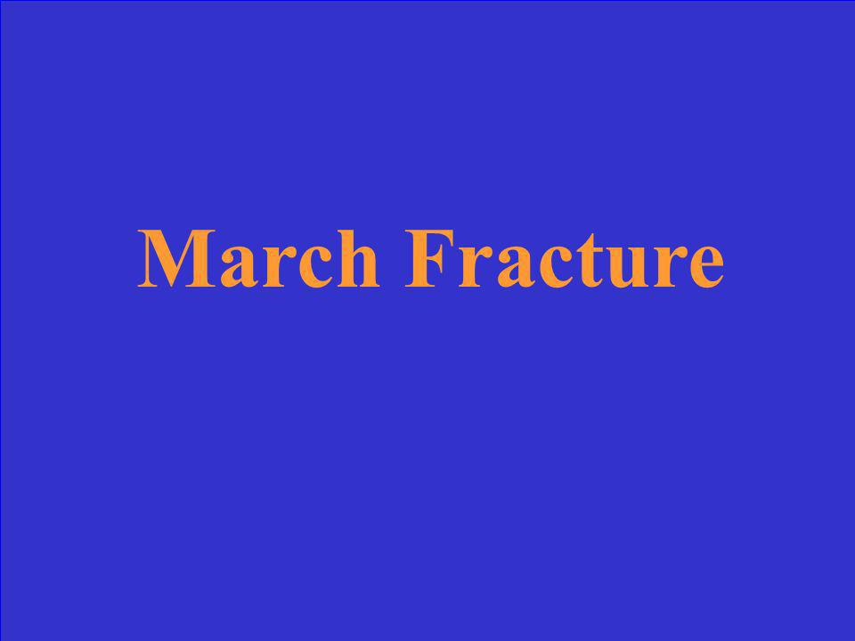 March Fracture
