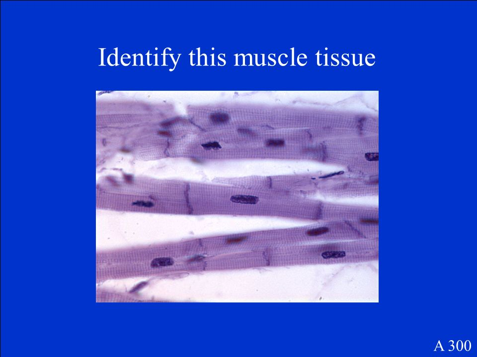 Identify this muscle tissue