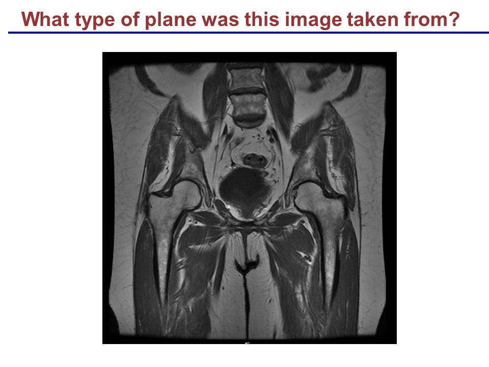 What type of plane was this image taken from