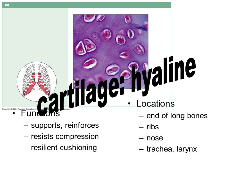 cartilage: hyaline Locations Functions end of long bones ribs