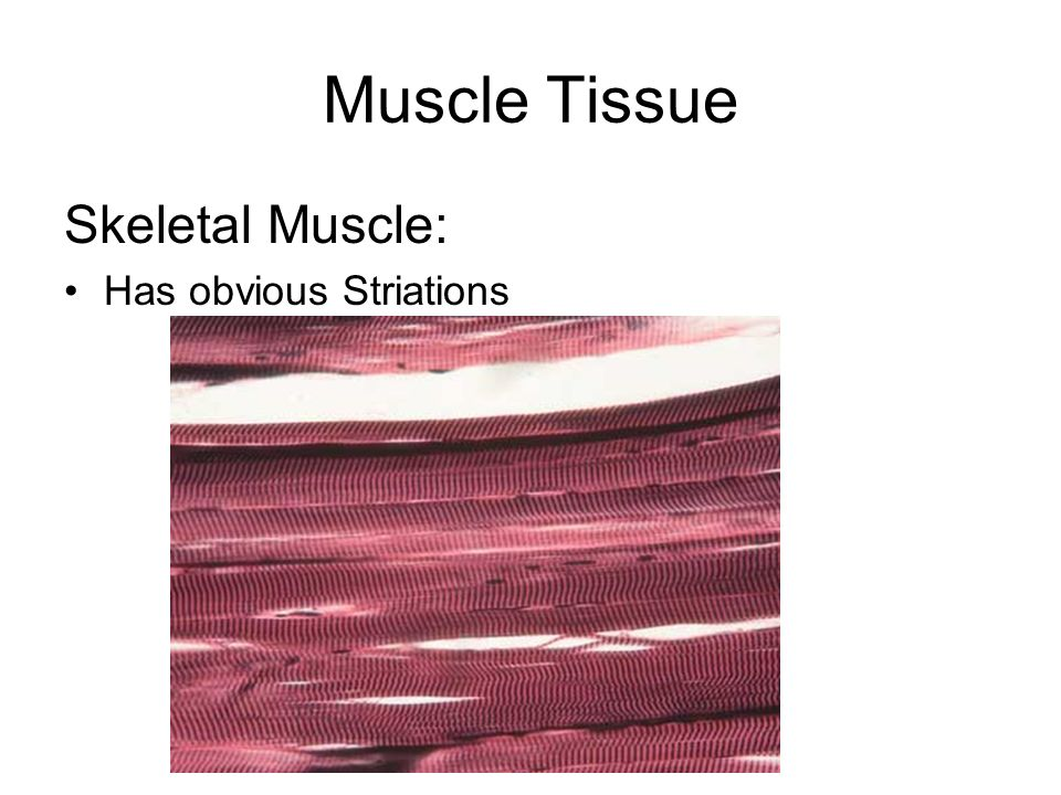 Muscle Tissue Skeletal Muscle: Has obvious Striations