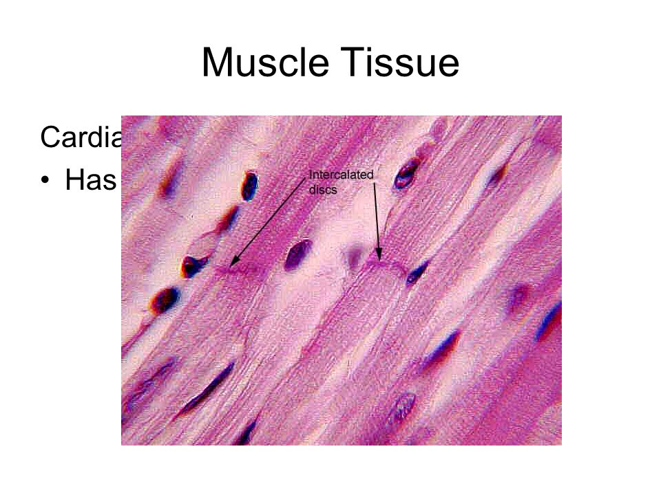 Muscle Tissue Cardiac Muscle Has Intercalated Discs