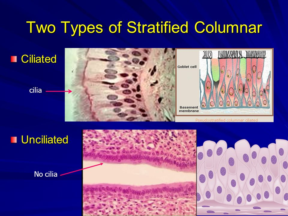 Two Types of Stratified Columnar