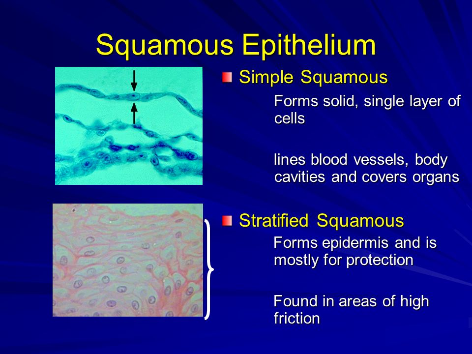 Squamous Epithelium Simple Squamous Stratified Squamous