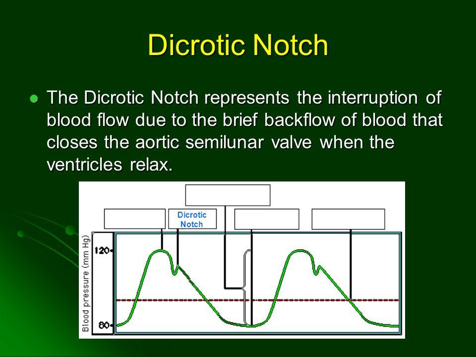 Dicrotic Notch