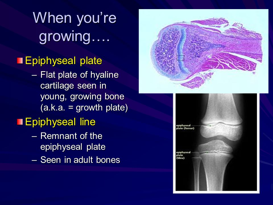 When you're growing…. Epiphyseal plate Epiphyseal line