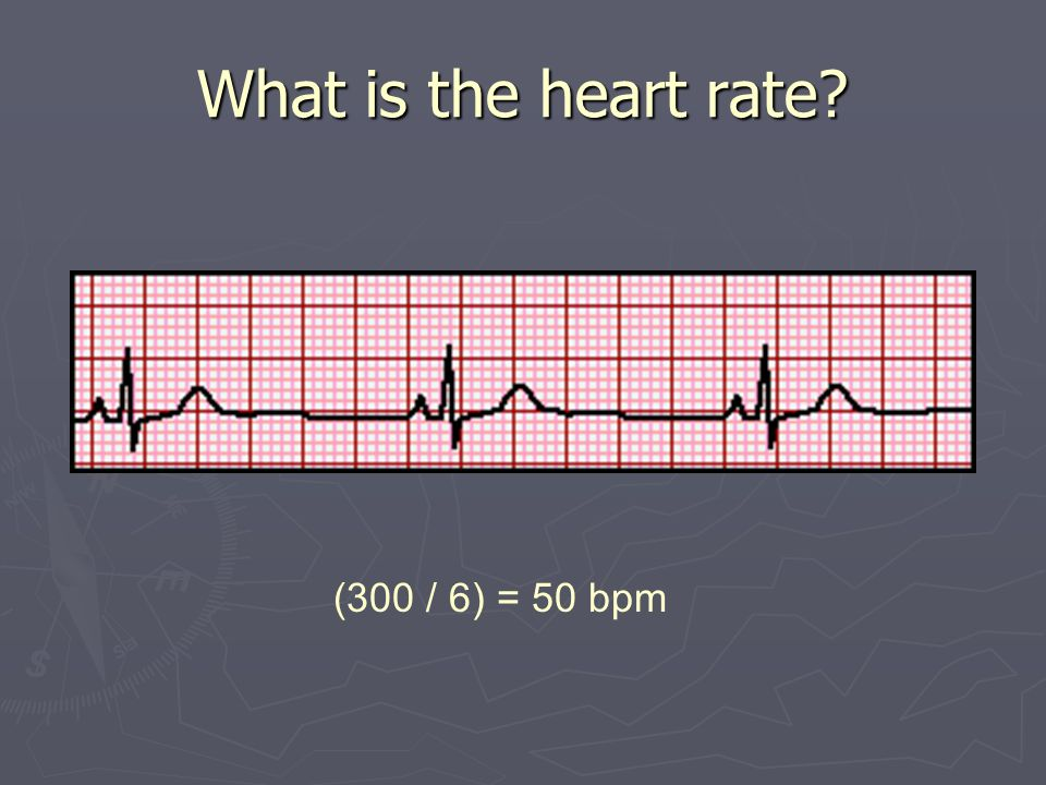 What is the heart rate (300 / 6) = 50 bpm