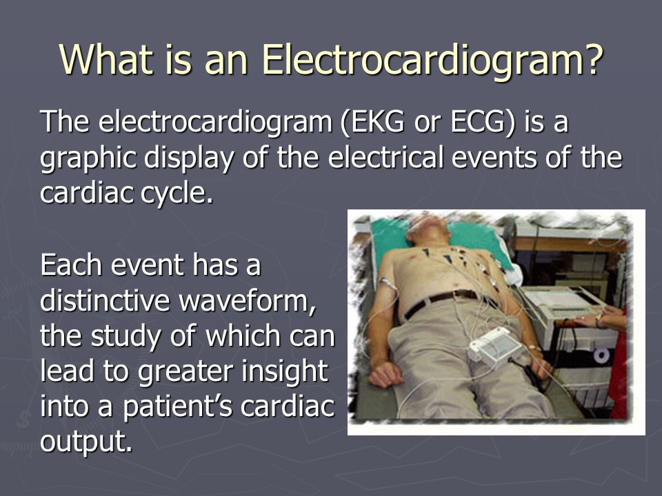 What is an Electrocardiogram