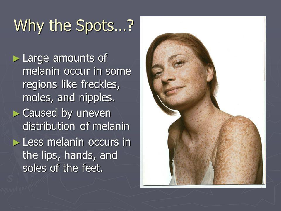 Why the Spots… Large amounts of melanin occur in some regions like freckles, moles, and nipples. Caused by uneven distribution of melanin.