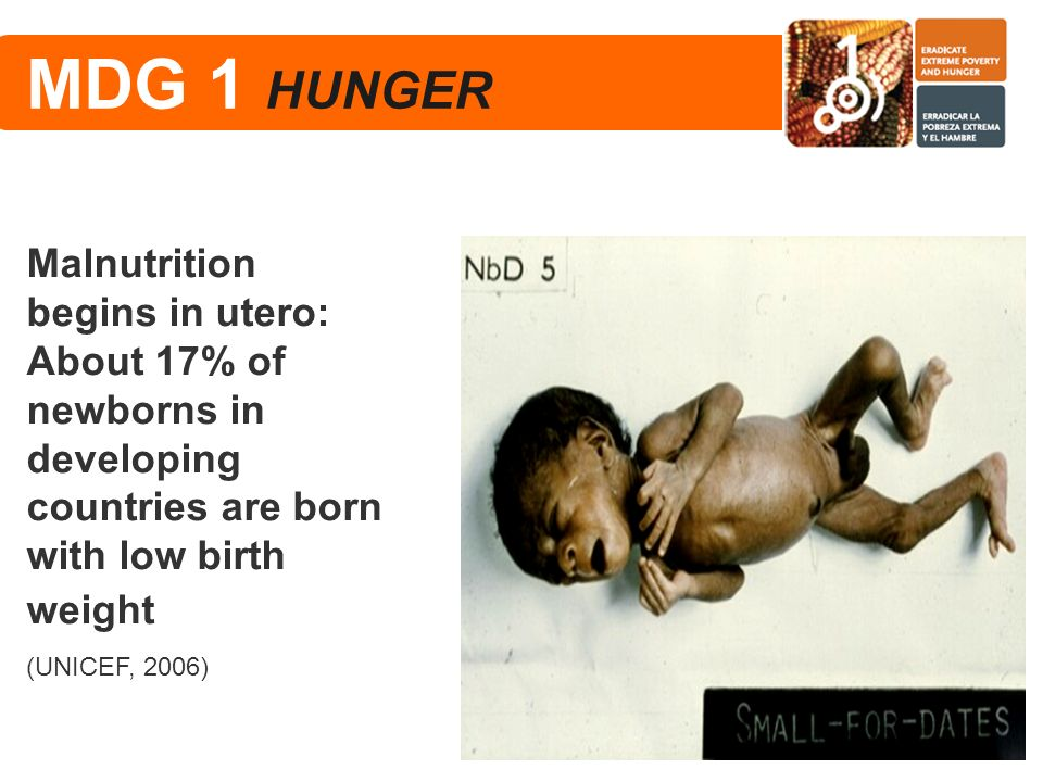 MDG 1 HUNGER Malnutrition begins in utero: About 17% of newborns in developing countries are born with low birth weight.