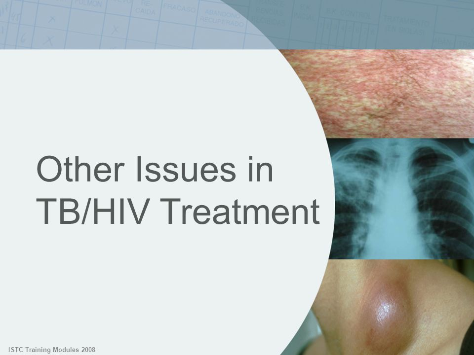 Other Issues in TB/HIV Treatment
