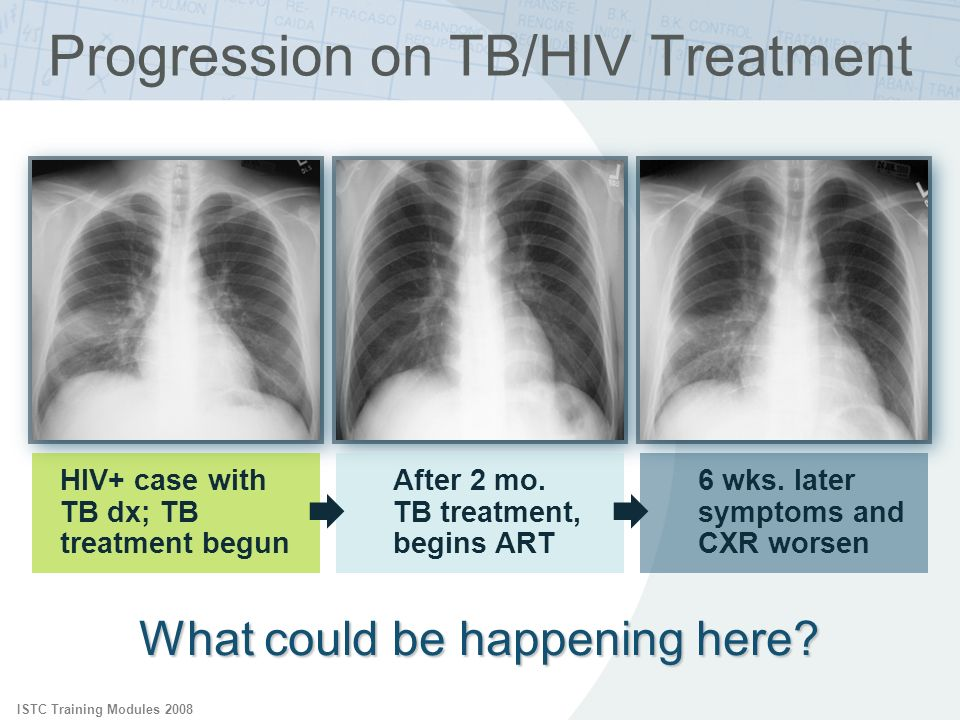 Progression on TB/HIV Treatment