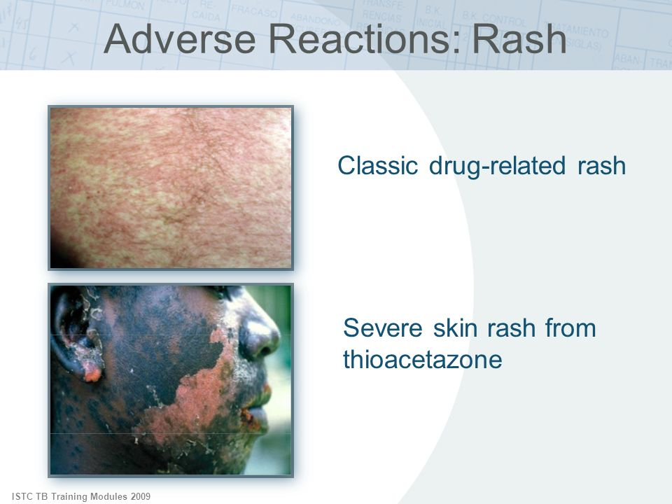 Adverse Reactions: Rash