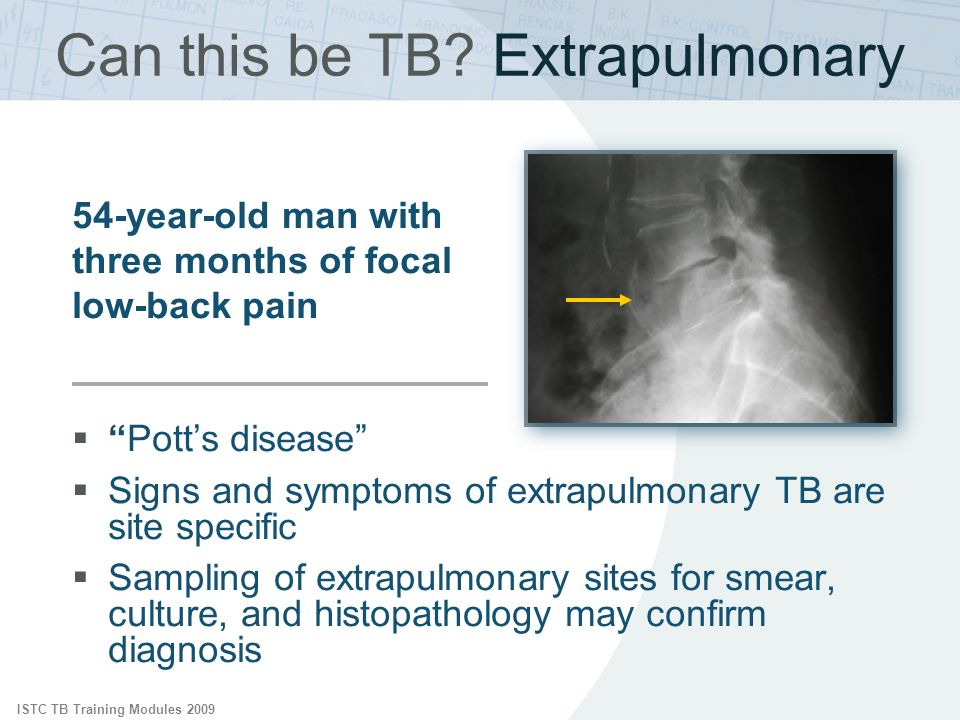 Can this be TB Extrapulmonary
