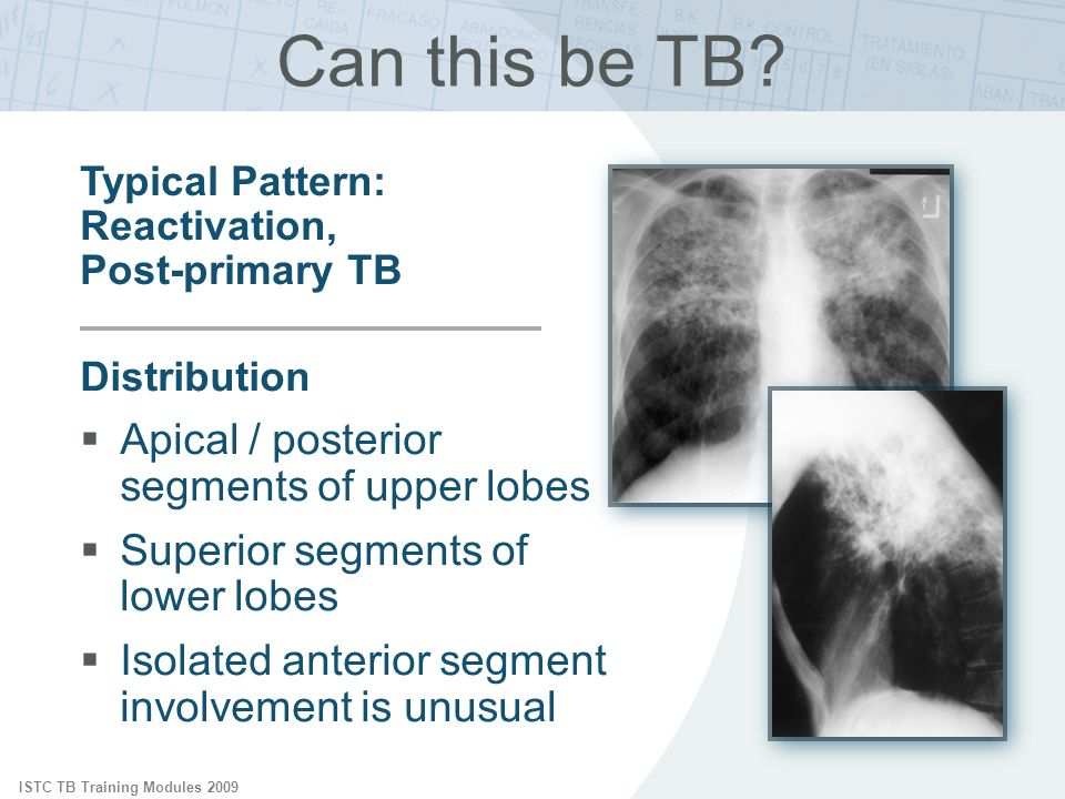 tuberculosis is a common disease Less common than tb pleurisy tb infects up to 100 million people worldwide, and up to 8 million develop active disease if the tuberculosis is not treated.
