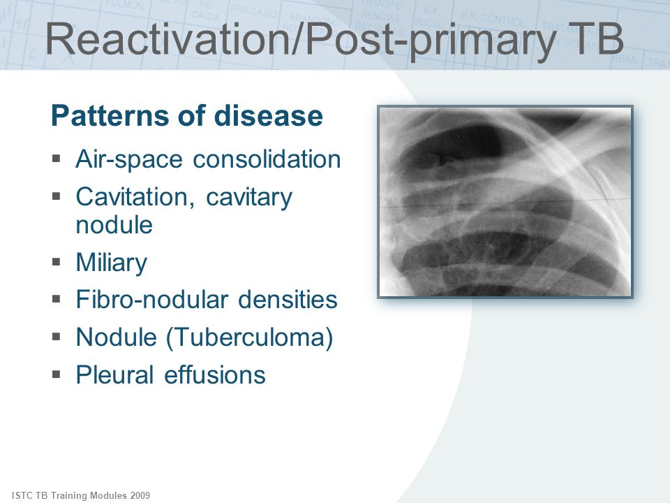 Reactivation/Post-primary TB