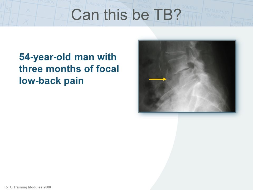Can this be TB ISTC Training Modules 2008. 54-year-old man with three months of focal low-back pain.