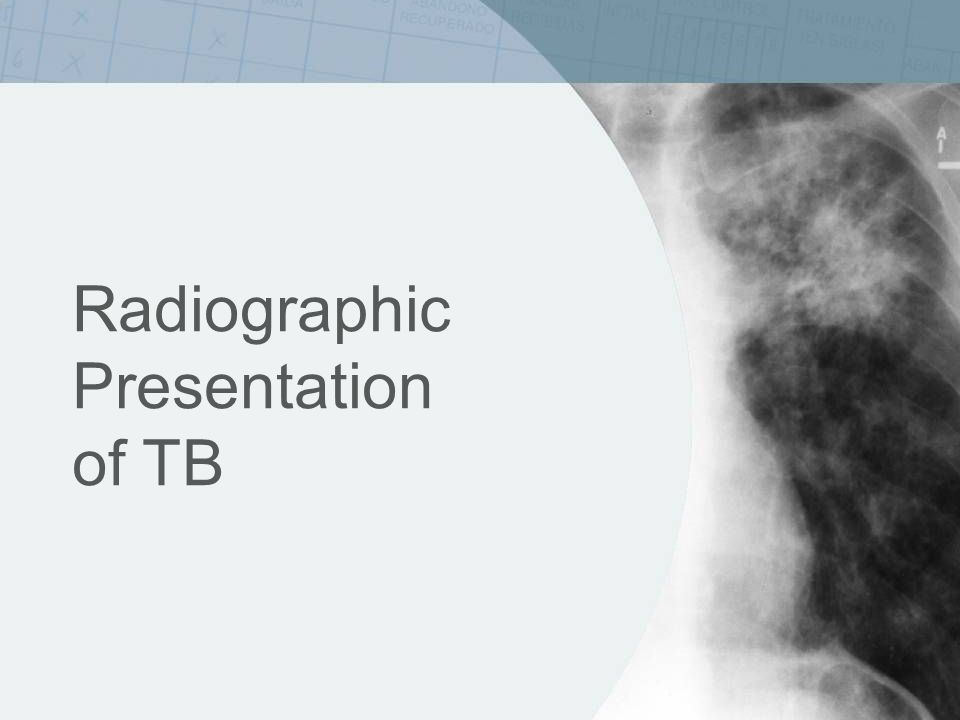 Radiographic Presentation of TB