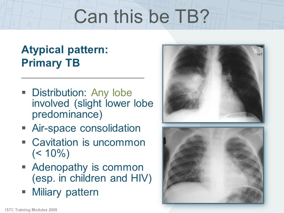 Can this be TB Atypical pattern: Primary TB