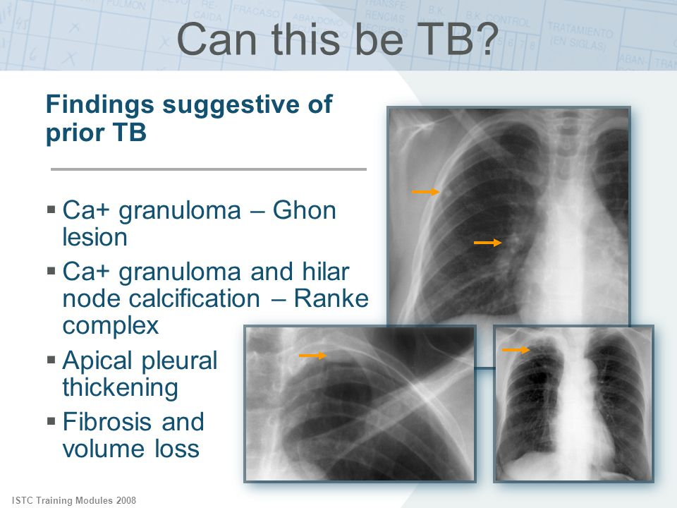 Can this be TB Findings suggestive of prior TB