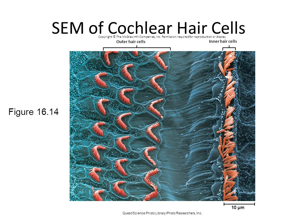 SEM of Cochlear Hair Cells