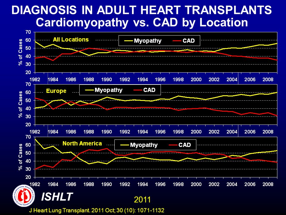 DIAGNOSIS IN ADULT HEART TRANSPLANTS Cardiomyopathy vs. CAD by Location