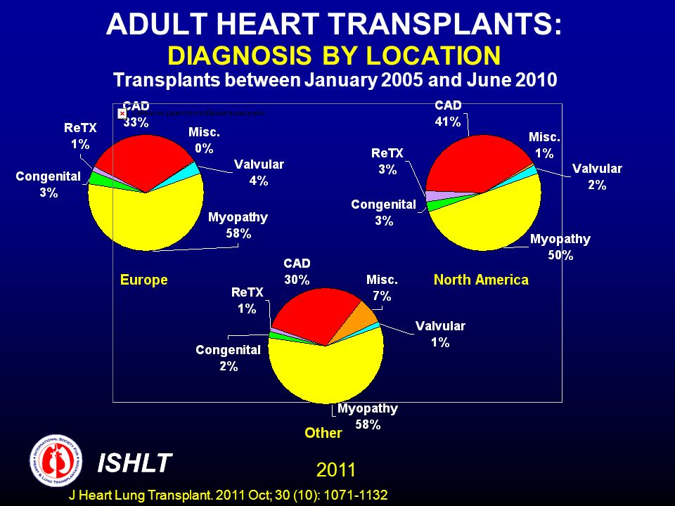 ADULT HEART TRANSPLANTS: DIAGNOSIS BY LOCATION Transplants between January 2005 and June 2010