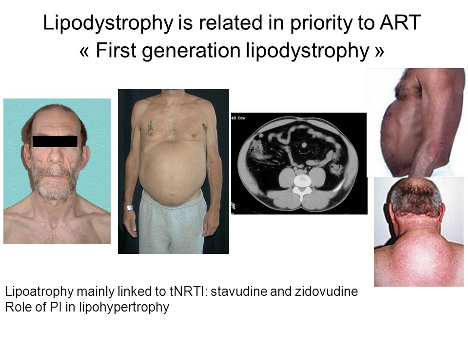 Lipodystrophy is related in priority to ART