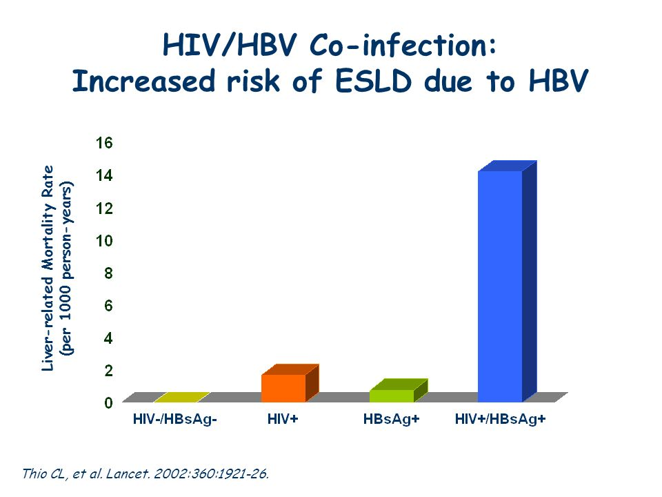 HIV/HBV Co-infection: Increased risk of ESLD due to HBV