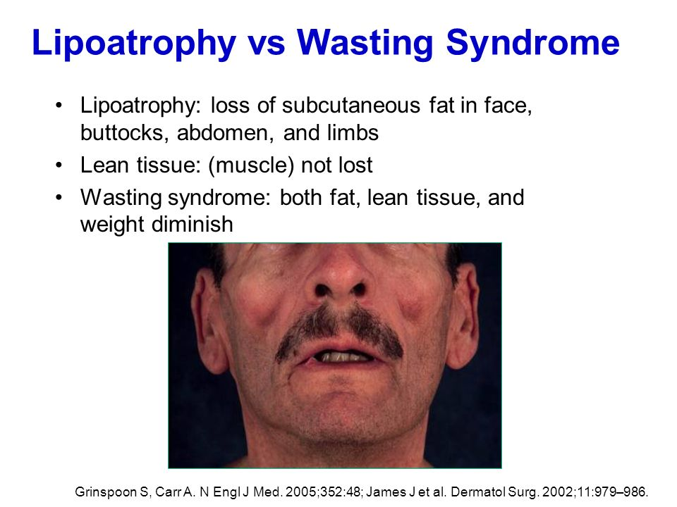 Lipoatrophy vs Wasting Syndrome
