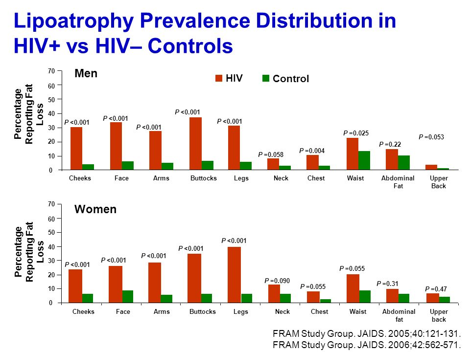 Lipoatrophy Prevalence Distribution in HIV+ vs HIV– Controls