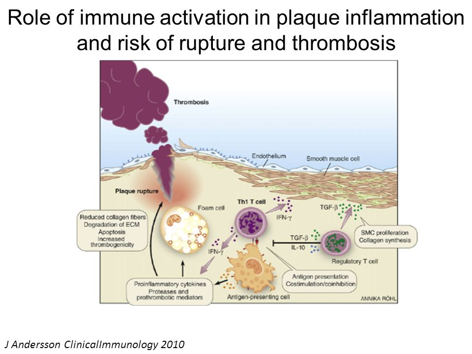 Role of immune activation in plaque inflammation and risk of rupture and thrombosis