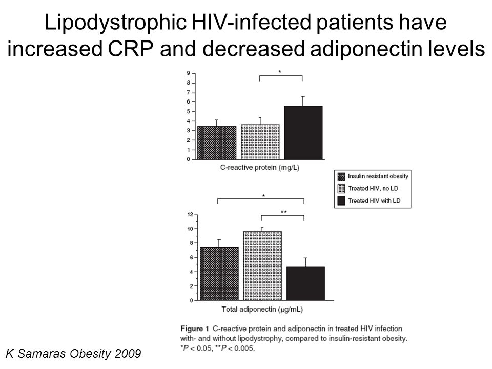 Lipodystrophic HIV-infected patients have increased CRP and decreased adiponectin levels