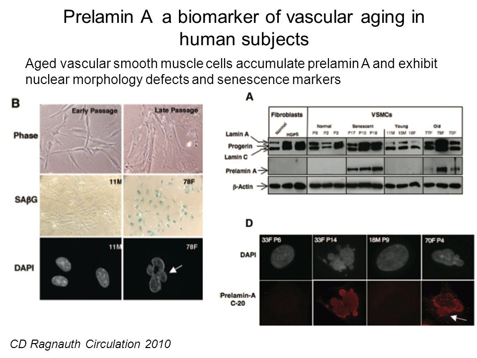 Prelamin A a biomarker of vascular aging in human subjects