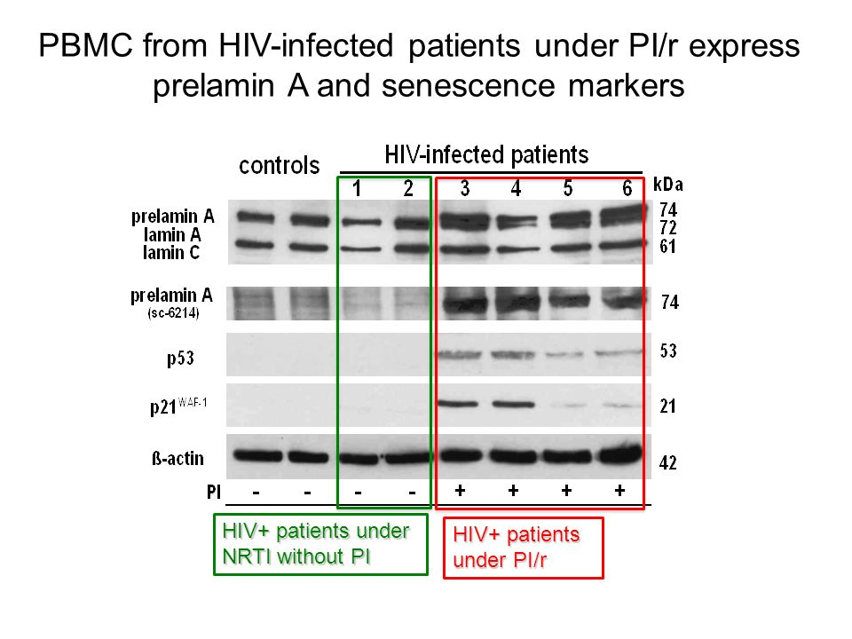 PBMC from HIV-infected patients under PI/r express prelamin A and senescence markers