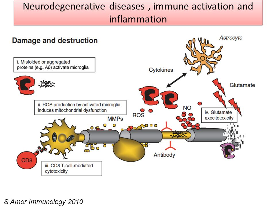 Neurodegenerative diseases , immune activation and inflammation